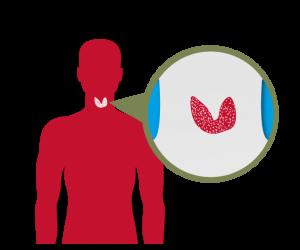 TRAB- TSH Receptor Anticuerpos